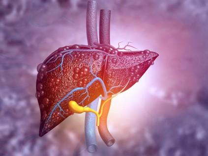 美研究发现能降低脂肪肝、减少体重增加的美食